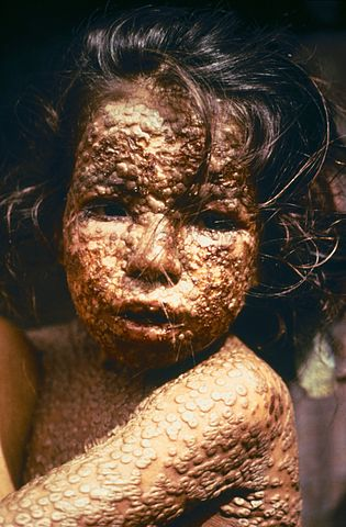 This young girl in Bangladesh was infected with smallpox in 1973. Freedom from smallpox was declared in Bangladesh in December, 1977 when a WHO International Commission officially certified that smallpox had been eradicated from that country. Via Wikipedia.